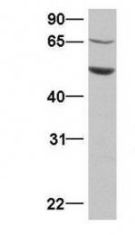 GTX45474 - SAMD4A / SMAUG1