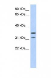 GTX45475 - DERP6