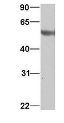 GTX45481 - alpha Tubulin / TUBA3C / TUBA2
