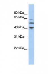 GTX45482 - alpha Tubulin / TUBA3C / TUBA2