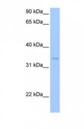 GTX45487 - Pyridoxal kinase / PDXK