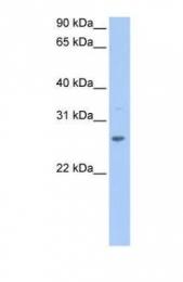 GTX45493 - CRISP1
