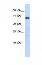GTX45521 - DENND2C