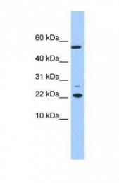 GTX45537 - DPH4