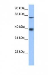 GTX45538 - MFSD4