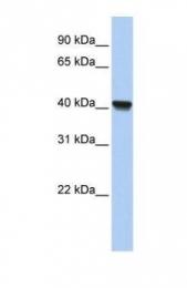 GTX45573 - RLBP1L1