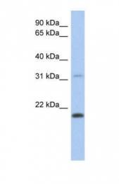 GTX45589 - CLECL1