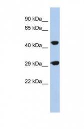 GTX45623 - C22orf25