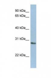 GTX45629 - NANP