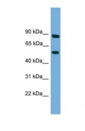 GTX45720 - Raftlin-2 / RFTN2