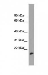 GTX45739 - MDP1