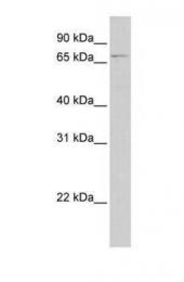 GTX45772 - Glomulin