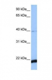 GTX45800 - HBS1-like protein