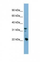 GTX45811 - Beta-crystallin B3