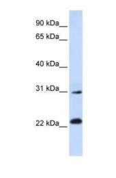 GTX45817 - AP3 complex subunit sigma-1