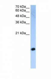 GTX45852 - Histone H2A type 2-C