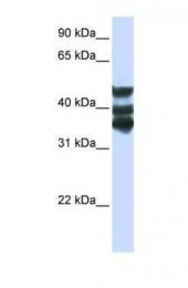 GTX45853 - Homogentisicase / HGD