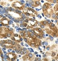 GTX45869 - MAS proto-oncogene