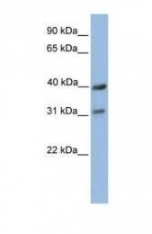 GTX45887 - Complex IV subunit III