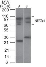 GTX45916 - NFAT2 / NFATC
