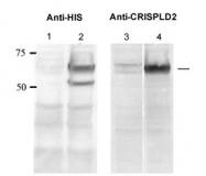 GTX45942 - CRISP11