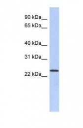 GTX45957 - ULBP1 / NKG2D ligand 1