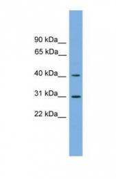 GTX45958 - 3-beta HSD7 / HSD3B7
