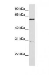 GTX45981 - Endo-Alpha Mannosidase