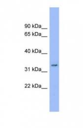 GTX45993 - DDRGK1