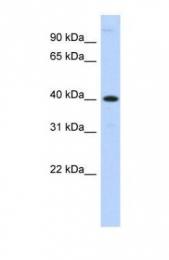GTX45995 - Metallophosphoesterase 1