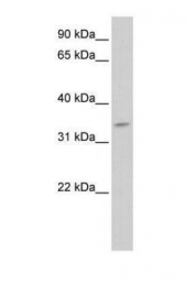 GTX46023 - Tenomodulin (TNMD)
