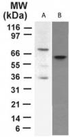 GTX46123 - Tumor protein p73 (TP73)