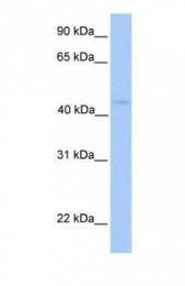 GTX46191 - Lipoyltransferase 1