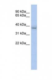 GTX46235 - KLHDC8B