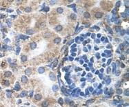 GTX46282 - Homeotic protein labial