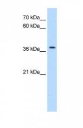GTX46298 - TMEM30A / CDC50A
