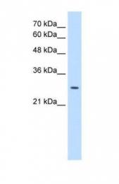 GTX46411 - D8-D7 sterol isomerase