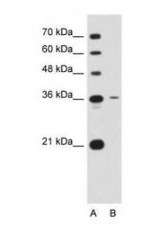 GTX46421 - Tetraspanin-5 (TSPAN5)