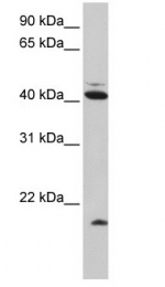 GTX46478 - Ubiquitin D (UBD)
