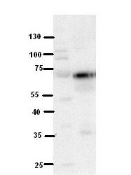 GTX46507 - Lebercilin-like protein