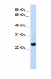 GTX46512 - C21orf56