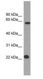 GTX46516 - Mis18 alpha