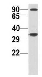GTX46522 - RRP1B