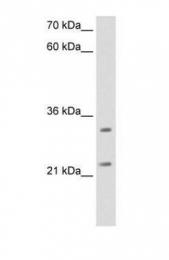 GTX46523 - ES1 protein homolog