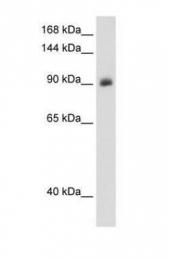 GTX46537 - Mineralocorticoid receptor