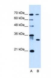 GTX46648 - ATP6AP1L