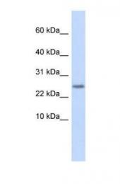 GTX46684 - Cystatin 9