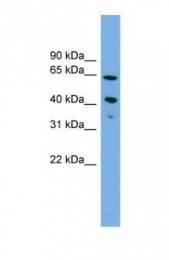 GTX46695 - ATP8B2