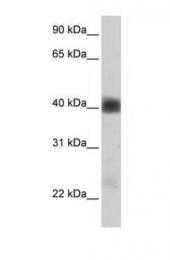 GTX46747 - SGCB (Beta-sarcoglycan)