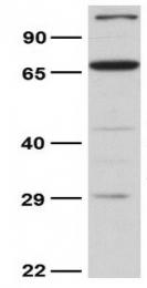 GTX46861 - NRAMP2 / SLC11A2